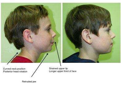 physiologic-dentistry-posture-jaw-children-chicago
